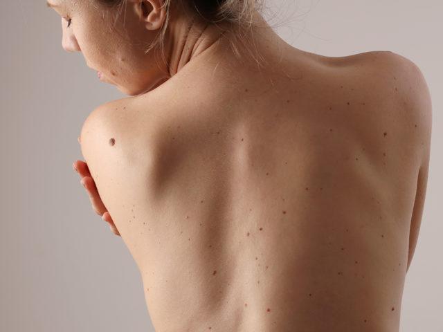 https://skinbylidianova.com.au/wp-content/uploads/2021/05/Skin-tag-removal-640x480.jpg